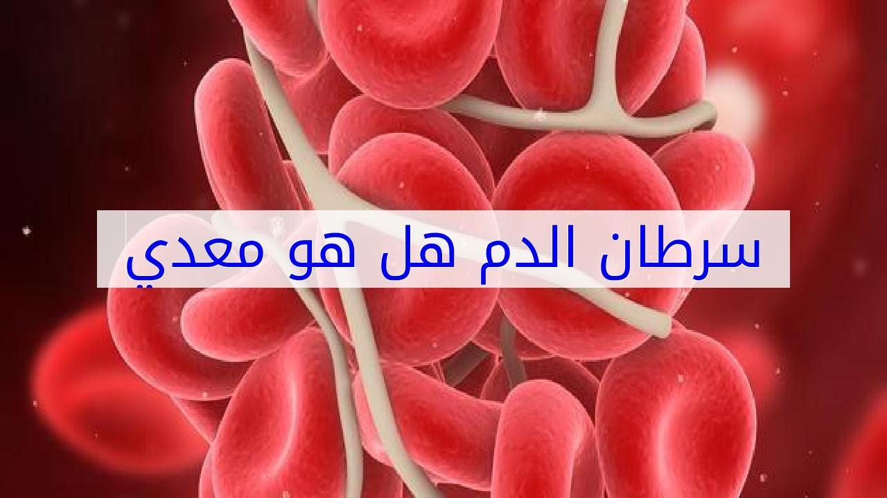 صورة هل سرطان الدم معدي , هل ينتقل سرطان الدم بالتعامل مع الاشخاص