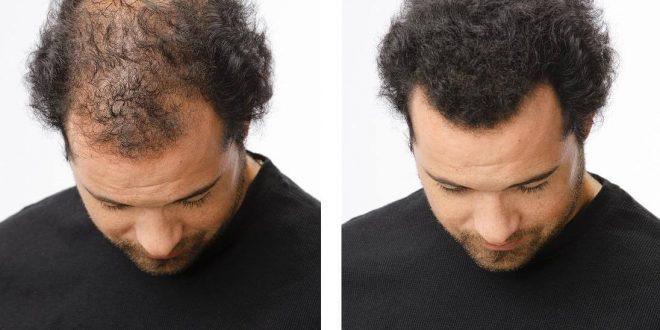 صور علاج تساقط الشعر للرجال بالثوم , فوائد الثوم في علاج الشعر