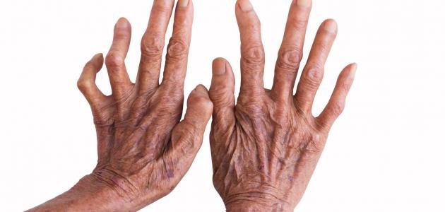 صور علاج مرض الجذام , اهم الاعراض و الطرق العلاجيه لمرض هانسن