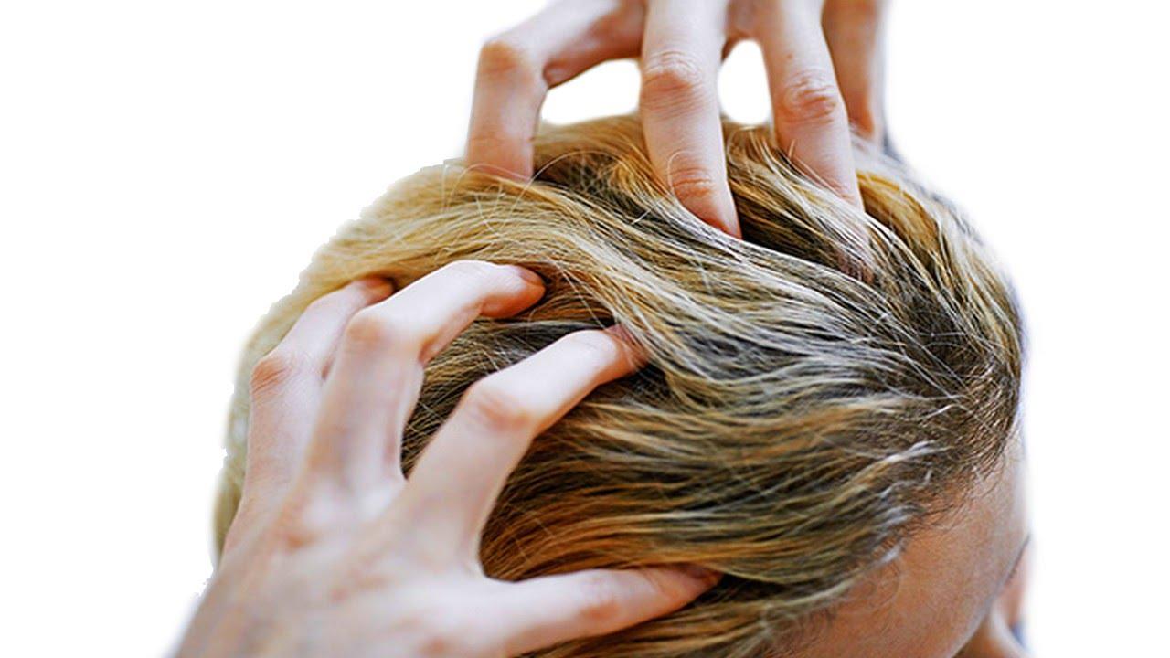 صورة علاج حكة الراس بالخل , كيف تتخلصين من حكه الراس
