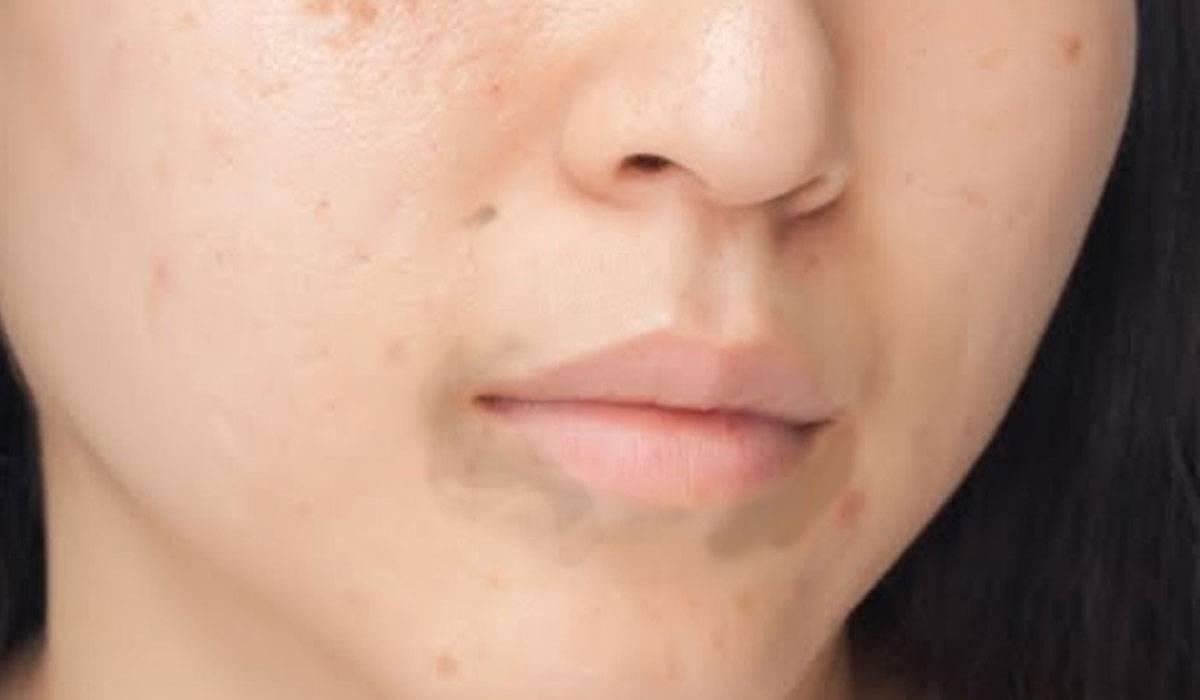 صور التخلص من السواد حول الفم , طرق مجربه للتخلص من سواد حول الفم