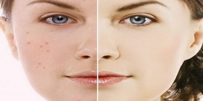 صور علاج البشرة الدهنية للنساء , افضل الطرق والوصفات لعلاج البشرة الدهنيه