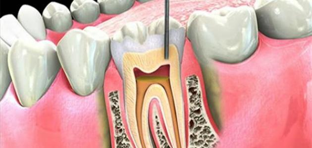 صور علاج عصب الاسنان , التخلص من وجع عصب الاسنان