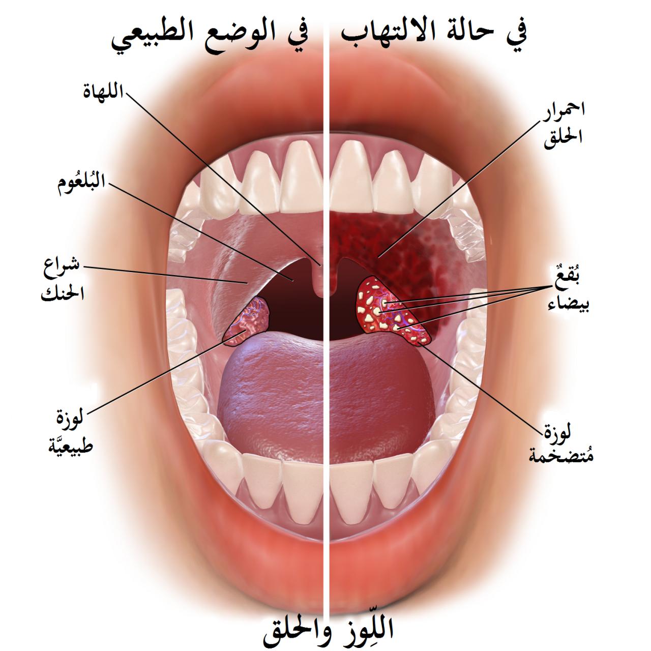 صورة الم في الحلق عند البلع , التهاب الحلق يؤلمنى فما هو السبب