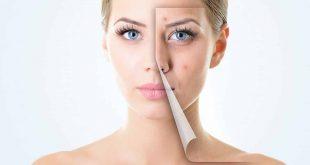 صورة ازالة حبوب الوجه في يوم واحد , تصفيه البشرة بطريقه طبيعيه