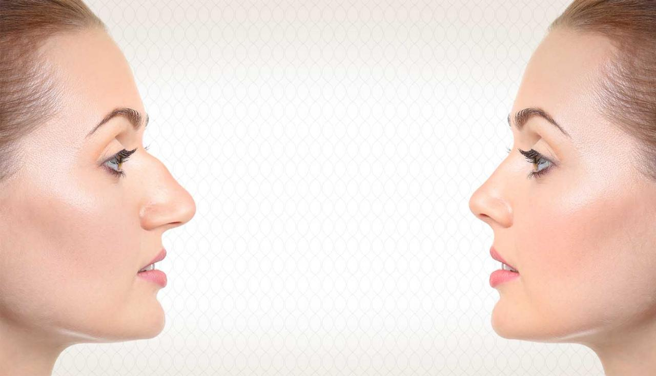 صور حكم تجميل الانف , راي الفقاء في عمليات التجميل للانف
