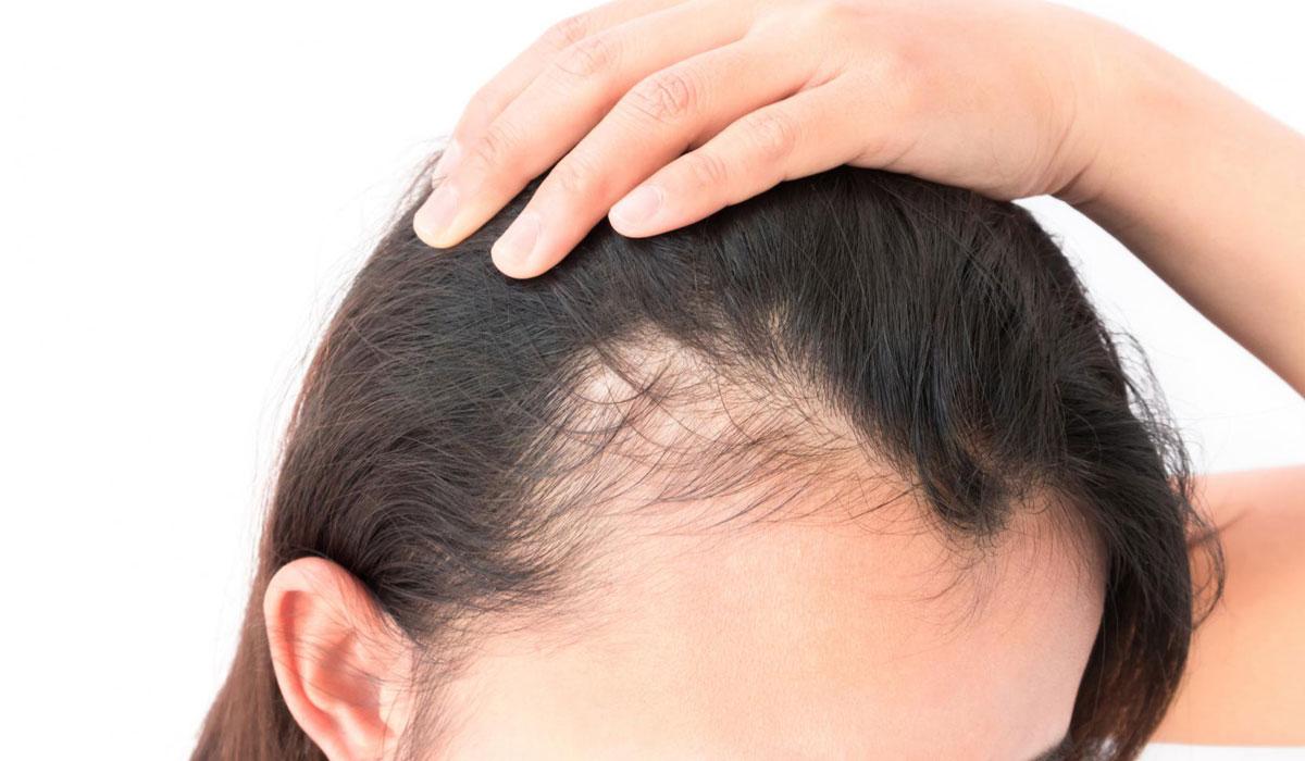صورة علاج الشعر الخفيف من الامام للنساء , التخلص من فراغات الراس