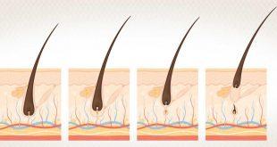 صور تحفيز نمو بصيلات الشعر , افضل علاج لتقويه الشعر