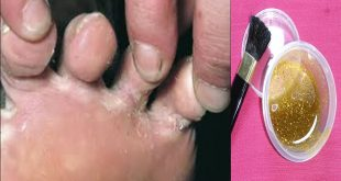 صور علاج اكزيما القدمين بالاعشاب , وصفه مجربه اكيده