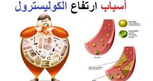 صور اعراض ارتفاع الكولسترول في الدم , خطر يصيب الجسم فتعرف عليه