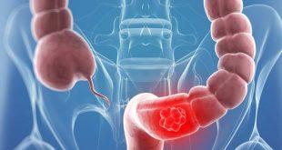 علاج الغازات والقولون , التخلص من الغازات الموجوده فى البطن
