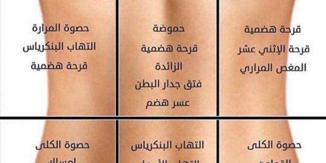 صورة انواع الام الظهر , التشخيص السليم لعلاج الم الظهر