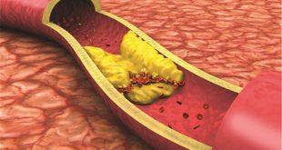 اعراض زيادة الكوليسترول والدهون الثلاثية , اعانى من زيادة الكوليسترول فى الدم