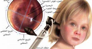 صورة انتفاخ الاذن عند الاطفال , كيف تحمى طفلك من التهاب الاذن الوسطى