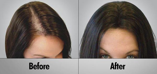 صورة زراعة الشعر في السعودية , لجمال شعرك اختارى الافضل لكى