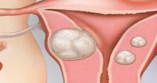 صورة علاج تليف الرحم بالاعشاب , تليف الرحم ومدى صحة علاجه بالاعشاب