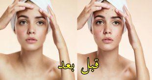 صورة وصفات طبيعية لتصفية الوجه , خلطه لبشرة نقيه مثل الاطفال