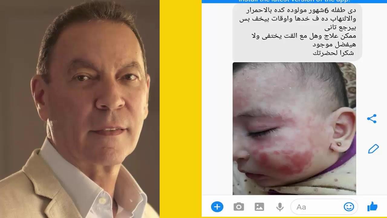 صورة علاج الحساسية الجلدية عند الاطفال , علاج الحساسيه للاطفال في يومان فقط