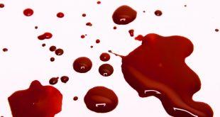 صورة خروج دم من الحلق بدون كحه , نصائح ومعلومات هامه لتجنب الخطر