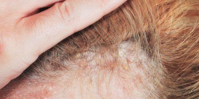 صورة علاج الاكزيما الدهنيه , نصائح للتخلص التهاب الجلد الدهني