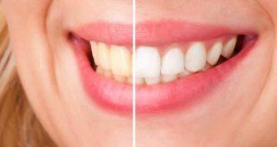 صورة تجربتي مع تبييض الاسنان بالزوم , لا تخفي ابتسامتك من اليوم