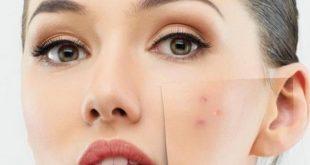 صورة طريقة التخلص من حبوب الوجه بسرعه , وصفات بسيطه تخلصك من حبوب البشره سريعا