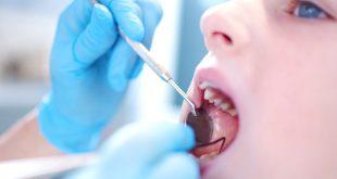 صورة شكل خراج الاسنان , وصف خراج الاسنان والسيطره عليه بسهوله