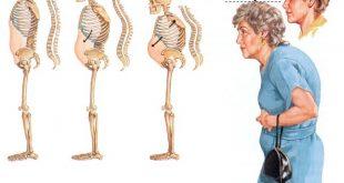 صورة اعراض هشاشة العظام , كيف تعرف انك مصاب بهشاشة العظام