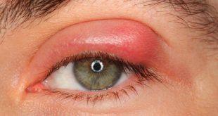 صورة علاج انتفاخ العين من فوق  ,  حلول سريعه لتهدئه العيون و التخلص من التورم