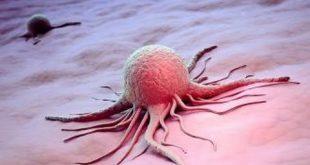 ماهي اسباب مرض السرطان
